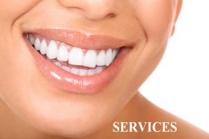 white-teeth2